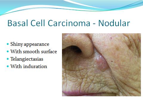 Cancer on lip line